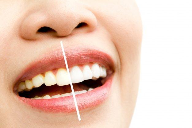 Com clareamento dental, seu sorriso fica ainda mais bonito!